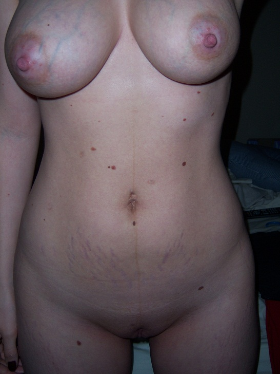 With on breasts marks women nude stretch