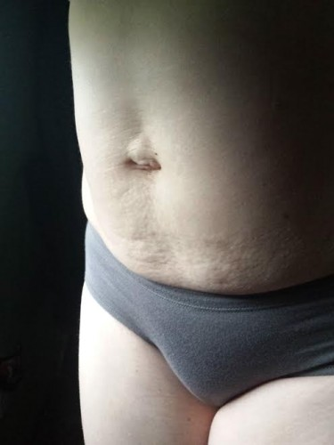 5 years PP with Diastasis Recti (Leslie)