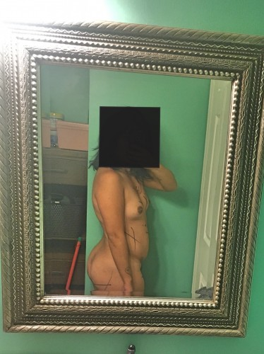 021518-anon-2