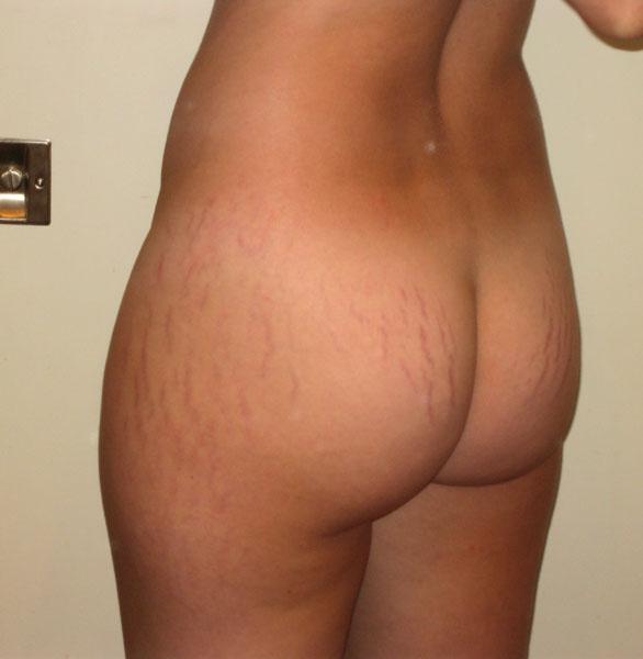 sexy-nude-women-stretch-marks